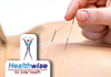 Click for more details about Healthwise - Acupuncture
