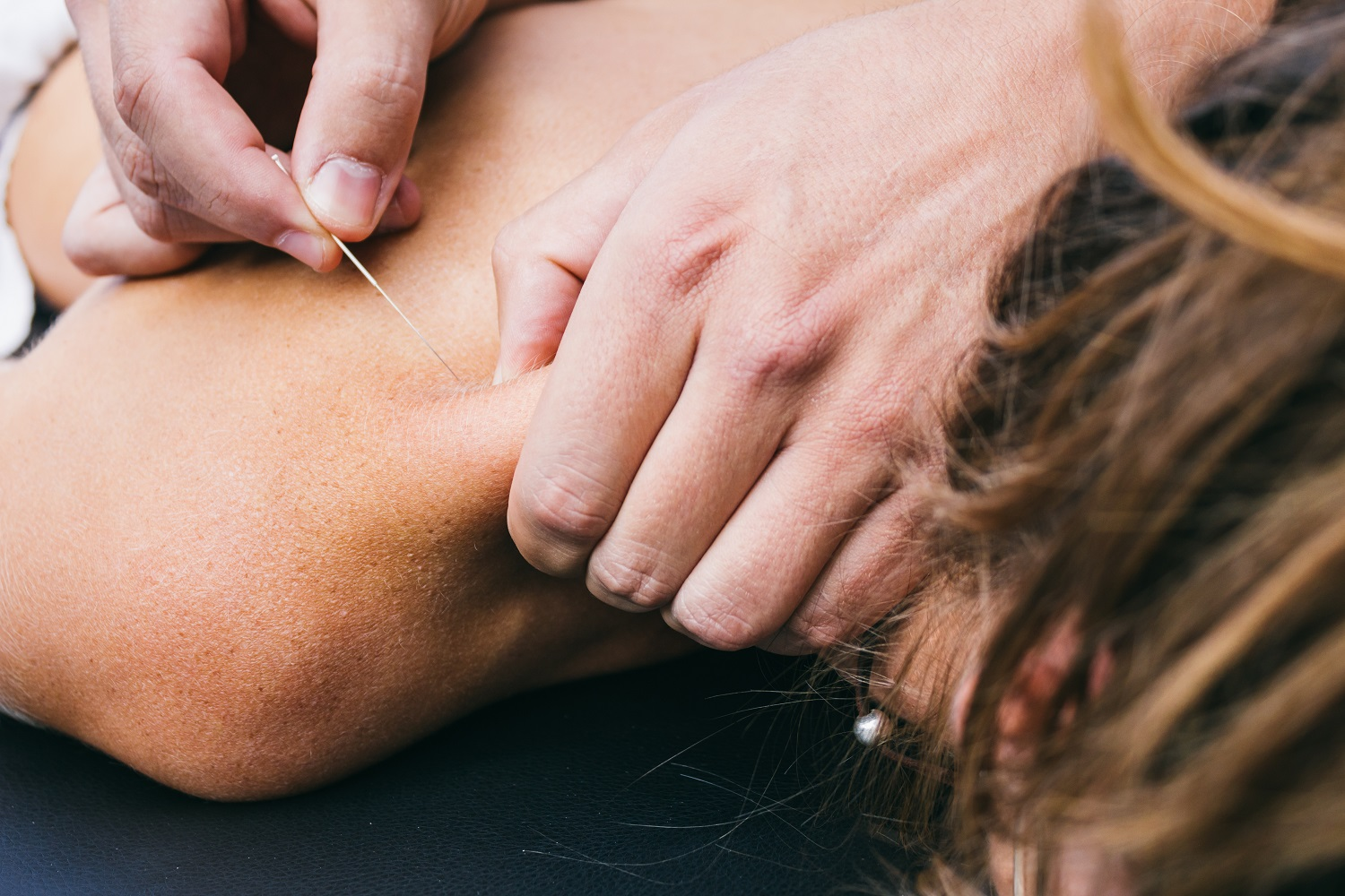 What is Dry Needling & What to Expect During Treatment?